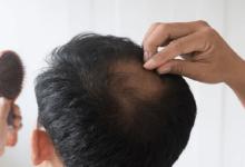 تصویر از ریزش موی غیر قابل درمان با الگو پذیری از رژیم اشتباه