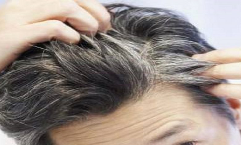 سفیدی زودرس مو با ۶ عادت رایج به سراغتان میآید